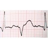 cardiologista para tratar insuficiência cardíaca Paulínia