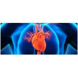 cardiologista para tratar miocardiopatia