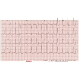 cardiologista para tratar pericardites
