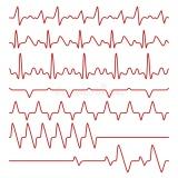 onde encontrar cardiologista especialista em arritmias São Bernardo do Campo
