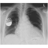 onde encontrar cardiologista para tratar miocardites Itatiba