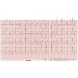 onde encontrar cardiologista para tratar pericardites Itupeva