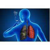 Tratamentos para Fumo